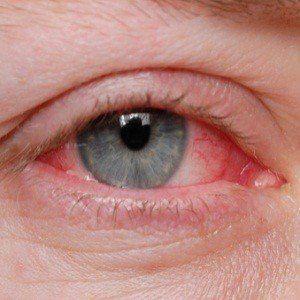 ¿Puedo dar a mi perro ojo rosado?