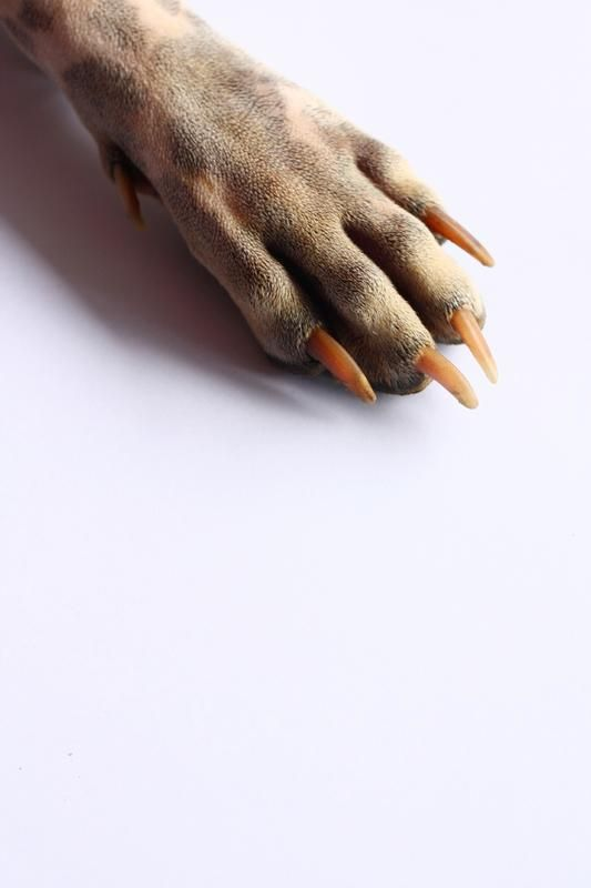 Overgrown_nails