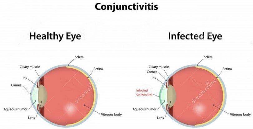 diagrama de ojo conjuntivitis
