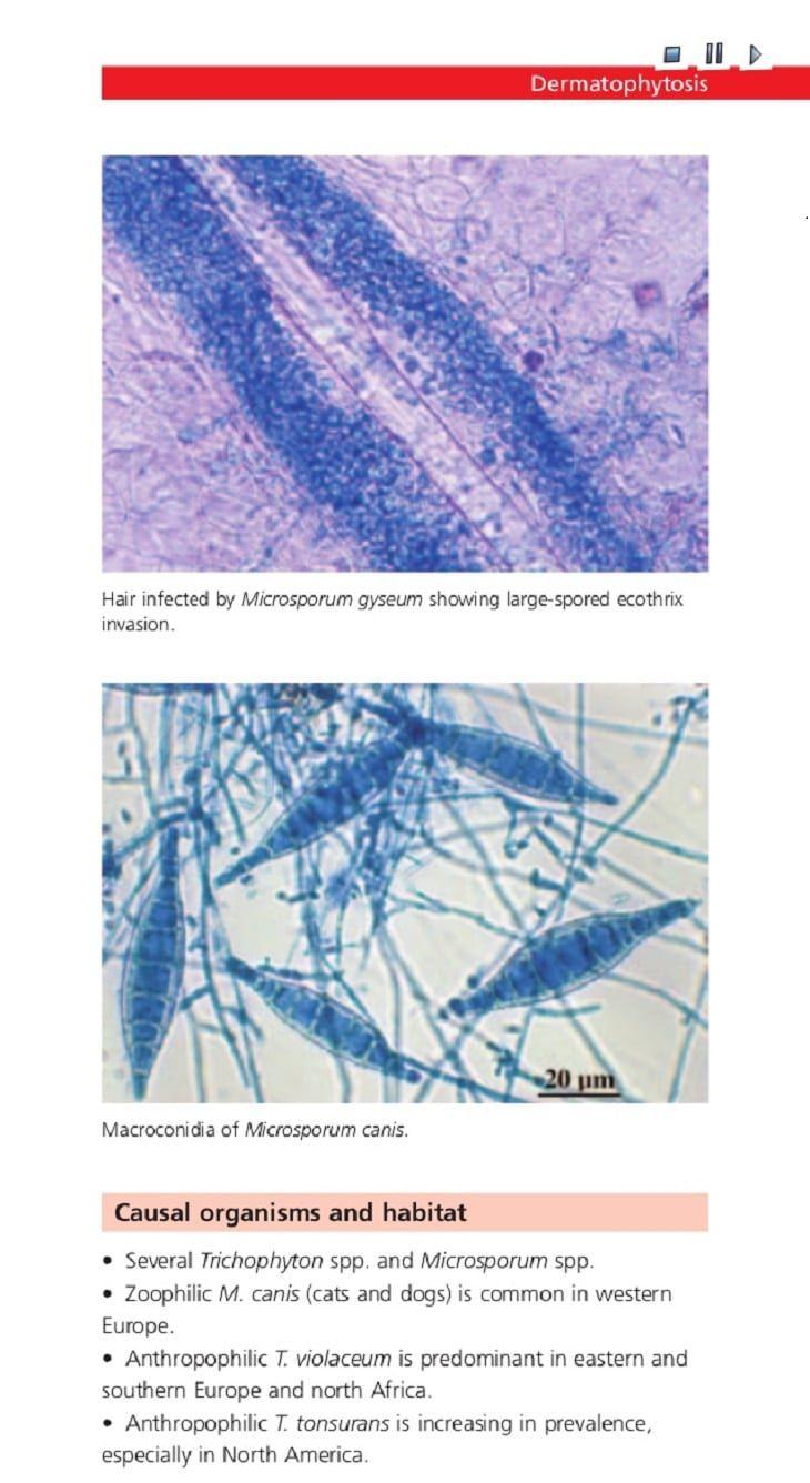 Infección micótica