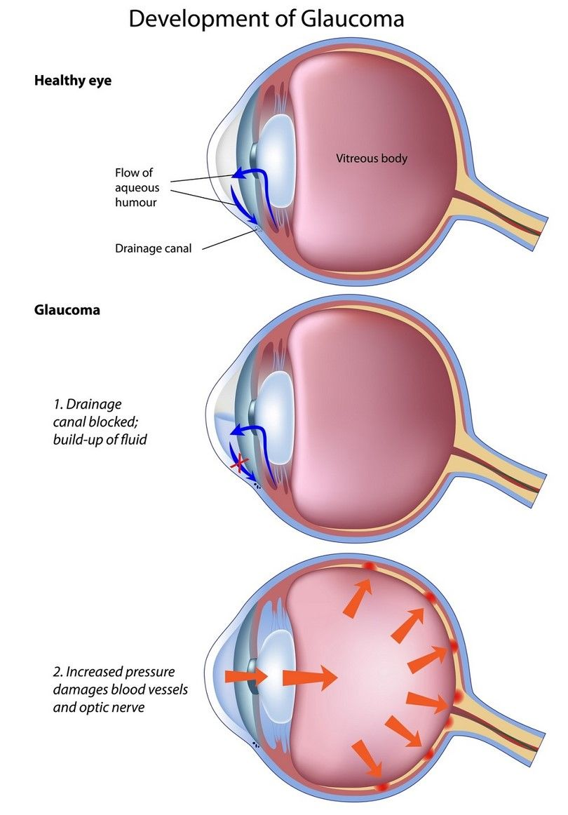eye_chart glaucoma