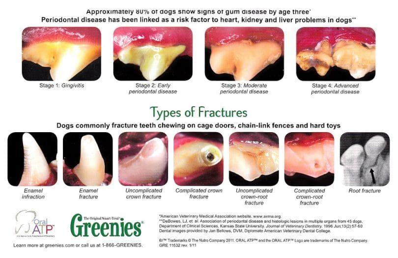 la enfermedad periodontal
