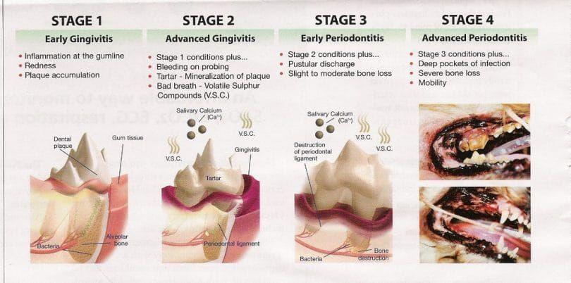 Etapas de la enfermedad periodontal